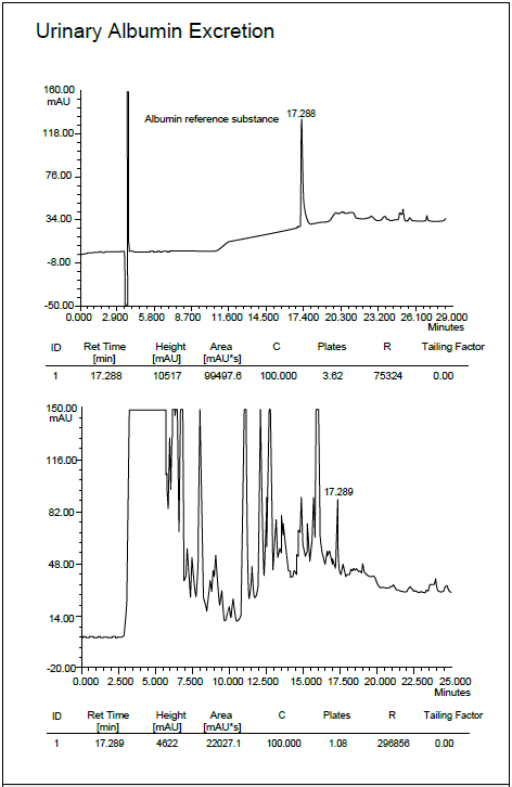 Columnas de HPLC de fase inversa C4